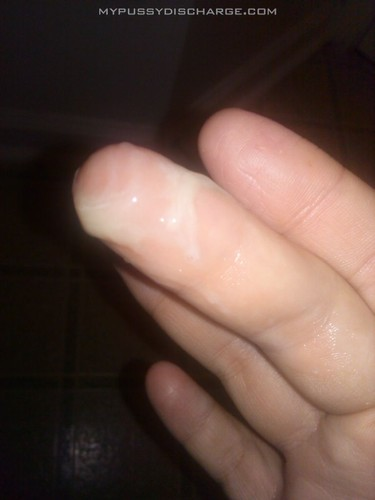 Vaginal discharge on fingers
